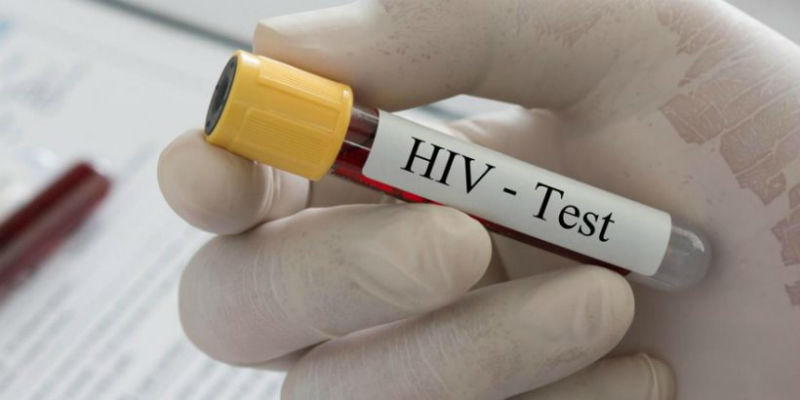 Macedonia registers 39 HIV cases in 2017