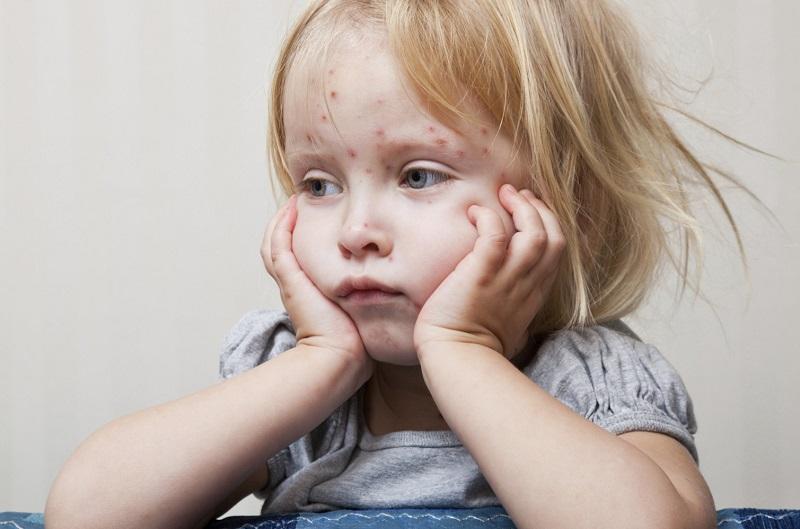 Епидемија на мали сипаници во Кичево и во Струга